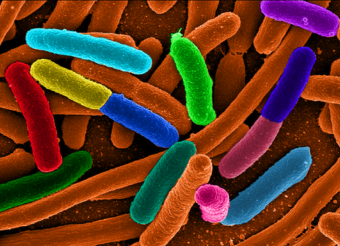 traveler's diarrhea, E. coli
