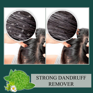 Anti-Dandruff Shampoo Bar