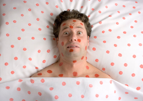 Man in bed with spots on his face