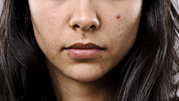 woman with pimple