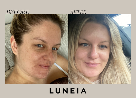 LUNEIA FOUNDER GEMMA MURARI - SKIN BEFORE & AFTER IMAGES