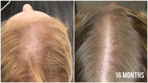 Virtual Hair Restoration Consultation & Scalp Analysis