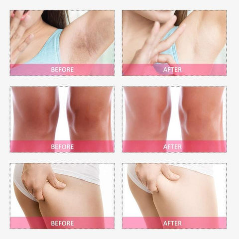 Image of 7 DAYS Underarms and Private Part Brightening Serum