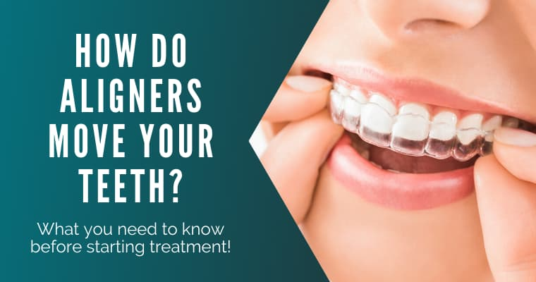How clear aligners work
