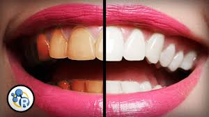 What's The Best Way To Whiten Teeth?