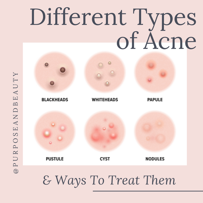 Different Types of Acne & Ways to Treat Them