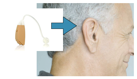 Open-Fit Hearing Aid Shown On Ear
