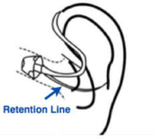 Diagram showing how hearing aid ear tube fits inside of ear.