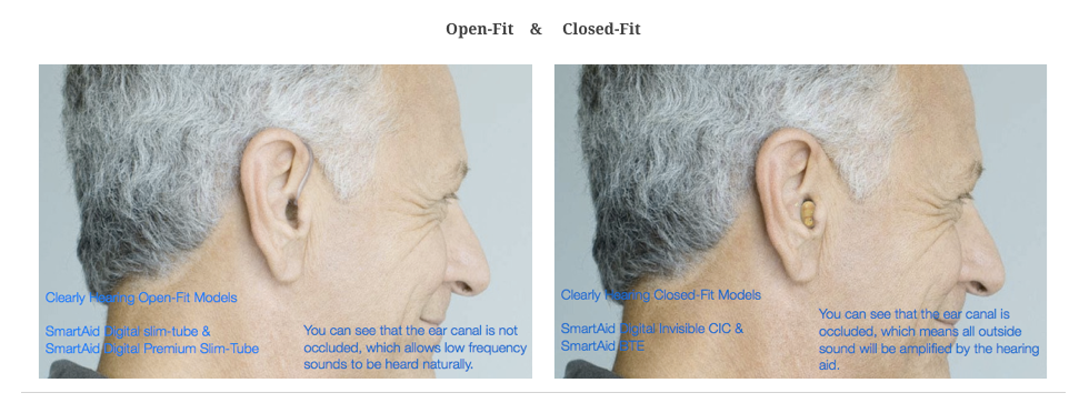 Open fit hearing aids reduce the occlusion effect | Clearly