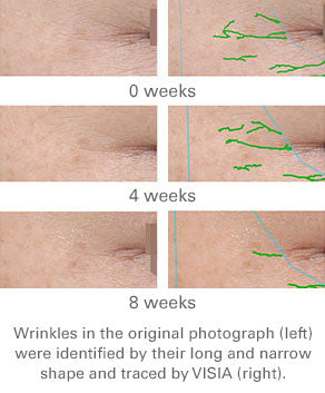 Change in number of wrinkles scanned by VISIA over an 8 week period