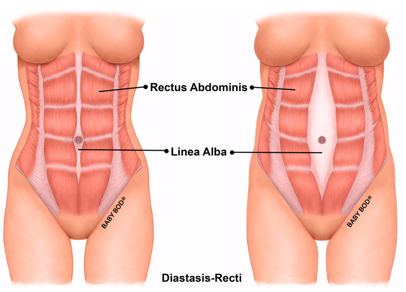 Part Two of Our Series on Diastasis Recti: How To Know If You Have It
