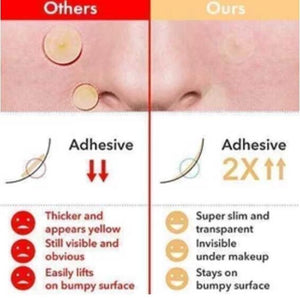 Skin Tag & Acne Patch ( 24 PCS )