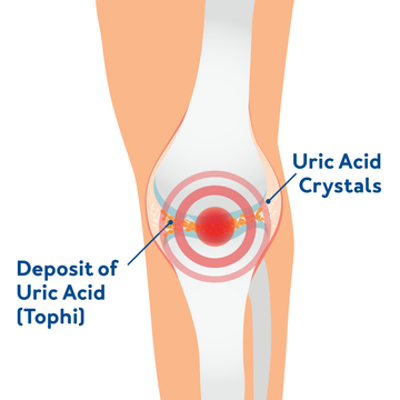 Red light therapy for osteoarthritis