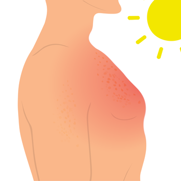 Red light therapy mends sun damage
