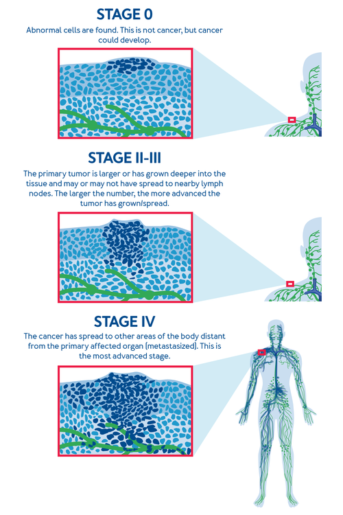 The Stages of Cancer. Stage 0: Abnormal cells are found. This is not cancer, but cancer could develop. Stage I: The primary tumor is small and has not spread to nearby lymph nodes. Stage II-III: The primary tumor is larger or has grown deeper into the tissue and may or may not have spread to nearby lymph nodes. The larger the number, the more advanced the tumor has grown/spread. Stage IV: The cancer has spread to other areas of the body distant from the primary affected organ (metastasized). This is the most advanced stage.