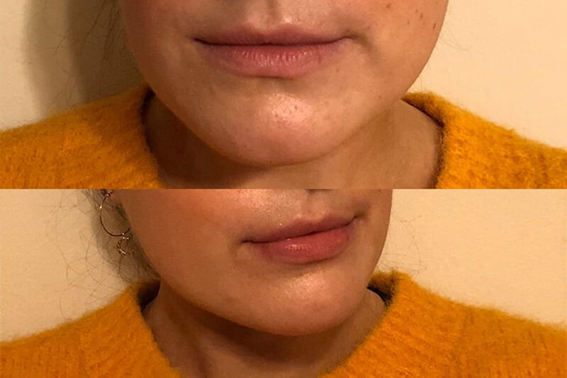 Red light therapy for lips before and after