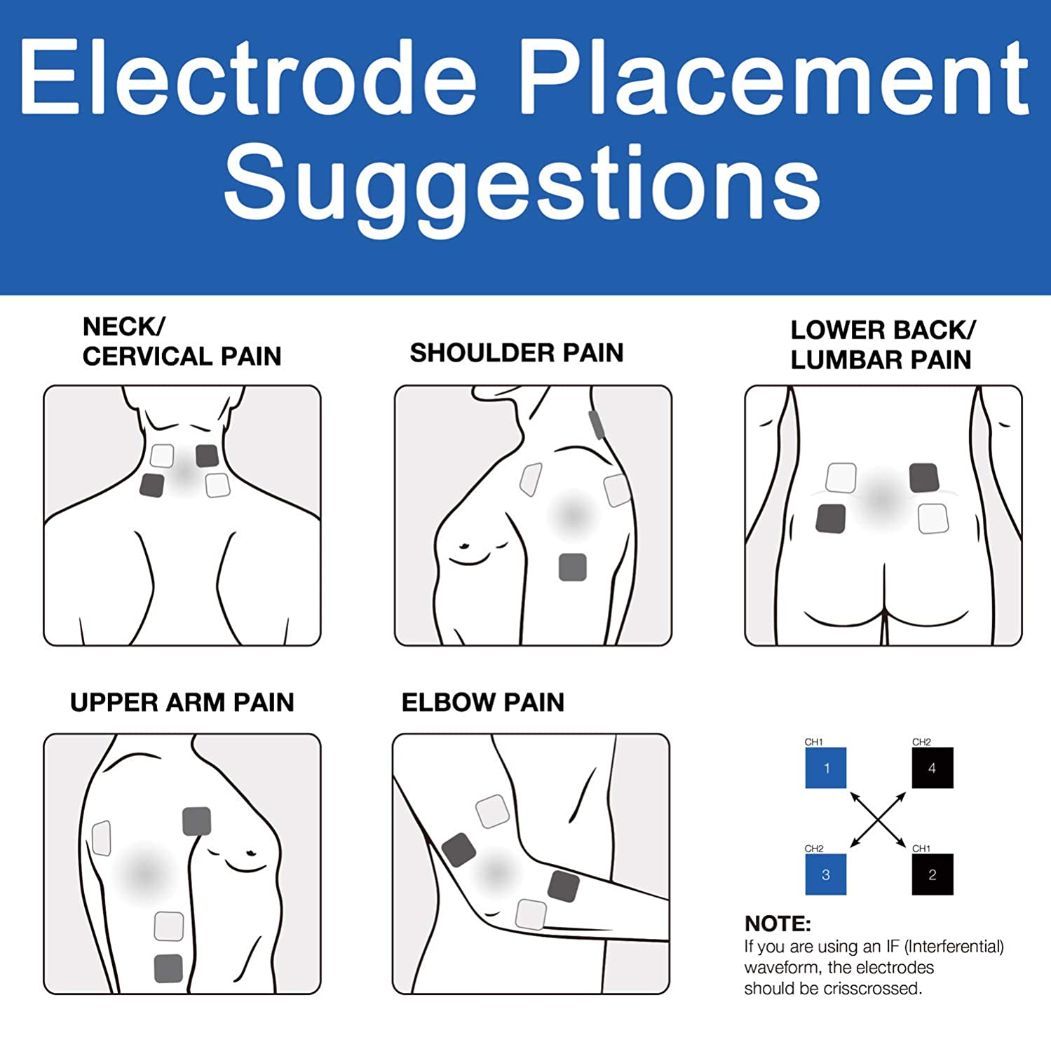 Electrode placement guide
