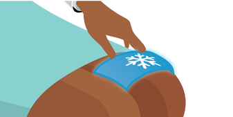 Cold compresses or ice packs applied to the affected area. Like heat compresses and wraps, these can come in many sizes and designs to best accommodate the particular area of the body you may be treating.