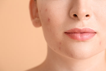 Red light therapy for acne