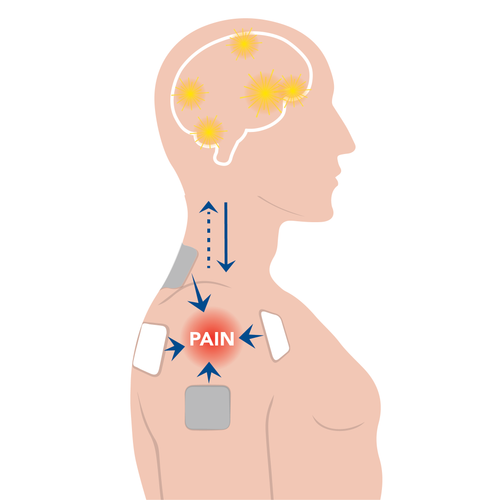 How do TENS Units Relieve Pain? Endorphin Release and Pain Gating.