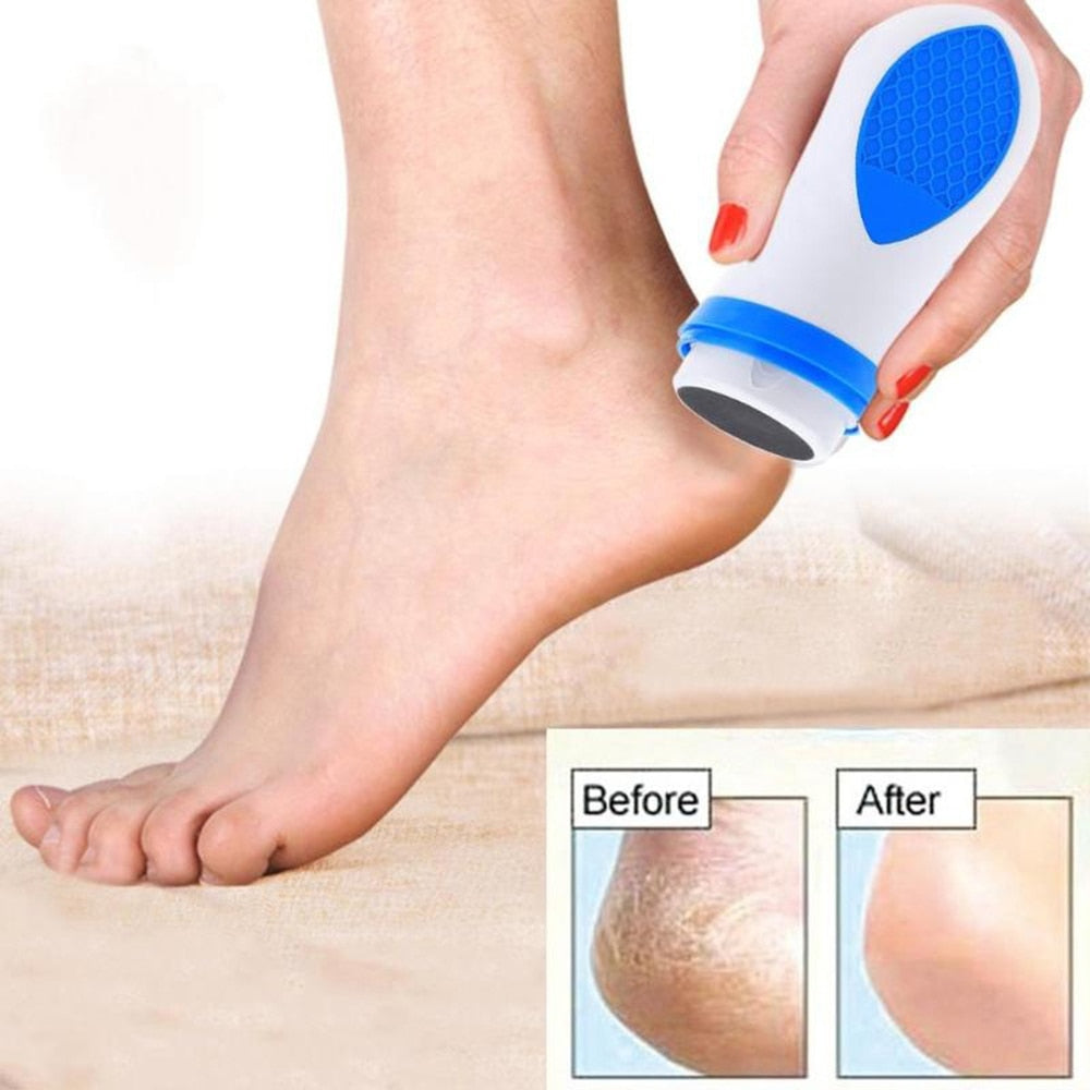 Your Perfect Pedi Callus Remover