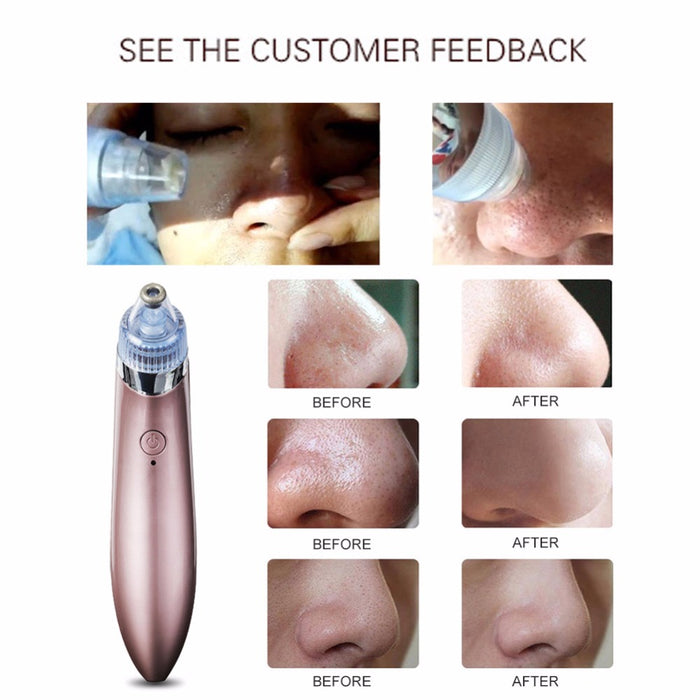 Mini  Vacuum Suction Blackhead Removal