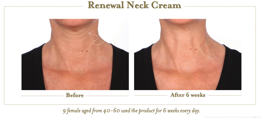 Renewal Neck Cream