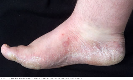 Foot affected by athlete's foot