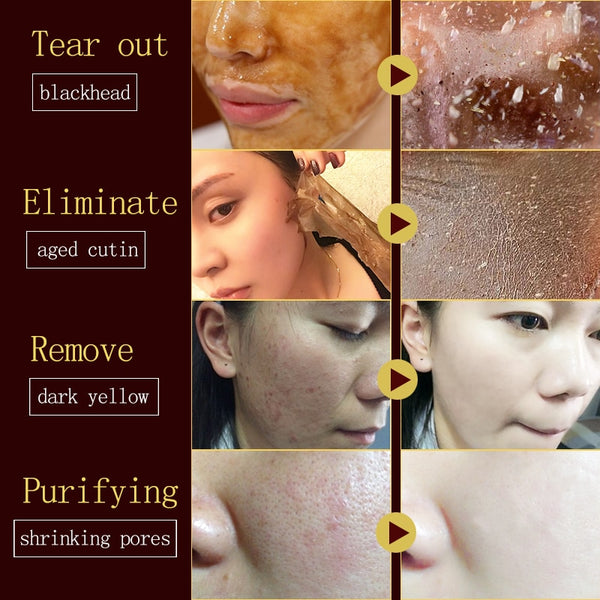 [variant_title] - Honey tearing mask Peel Mask oil control painless remove blackhead Peel Off Dead Skin Clean Pores Shrink Face Care 60g face mask