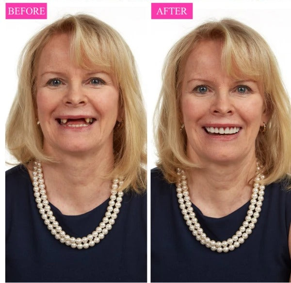 INSTANT SMILE VENEER - Upper & Lower Included