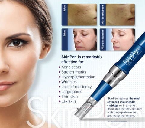SkinPen Microneedling Package of (3) - Receive FREE Neck add on to each treatment + (1) FREE Altar Cream