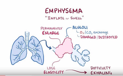 Understanding Emphysema and Supplemental Oxygen