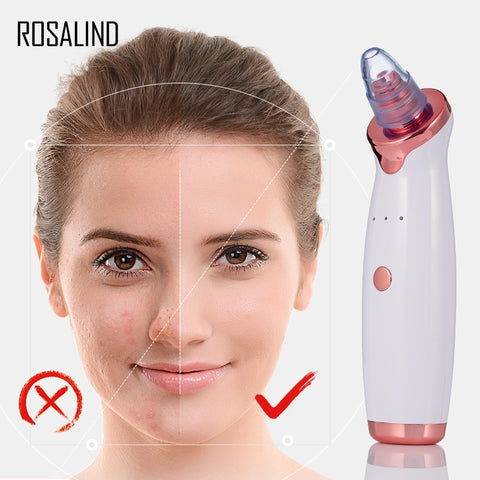 Blackhead Remover Vacuum Cleaner With USB Charging