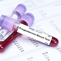 Progesterone Blood Test