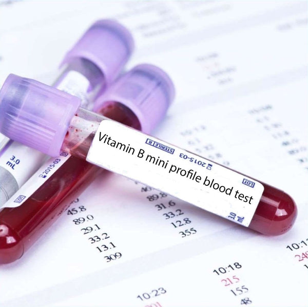 Vitamin B mini profile blood test
