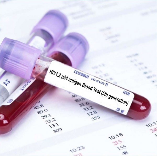 HIV1,2 p24 antigen Blood Test (5th generation)