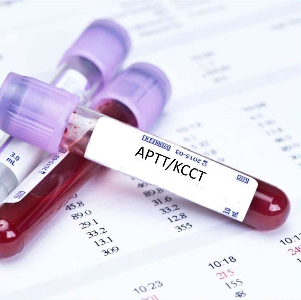 APTT/KCCT Blood Test