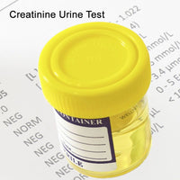 Creatinine Urine Test