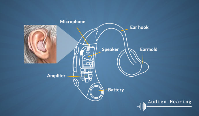 Do You Need a Hearing Aid?
