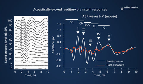 Auditory Brain Response Results and Interpretation