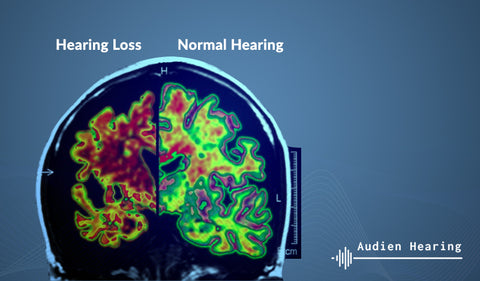 Diagram showing the heat signature of a brain with normal hearing versus a brain with hearing loss
