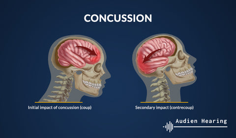Infographic showing mechanism of concussion induced head trauma