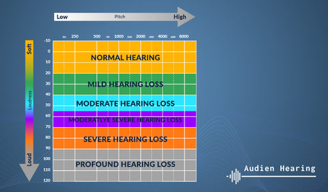 Chart showing the different degrees of hearing loss
