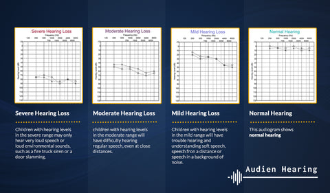 Diagnostic charts of different levels of hearing loss