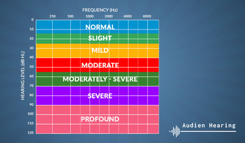 Infographic chart showing the range of hearing loss severity and associated decibel hearing levels