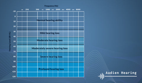 Chart of the various severities of hearing loss