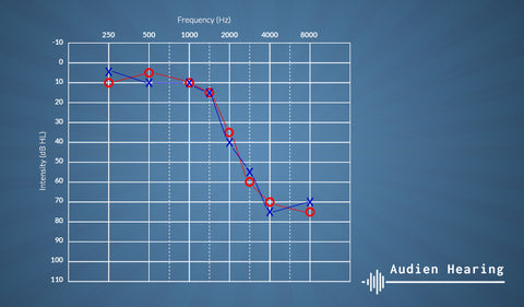 High frequency hearing loss diagram
