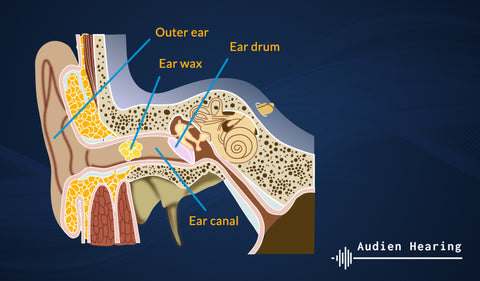 Diagram of the inner ear being cleaned out of earwax for tinnitus