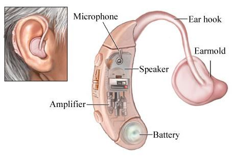An image showing the parts of a hearing aid