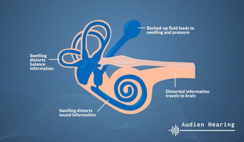 Diagram showing the inner ear and Meniere's Disease